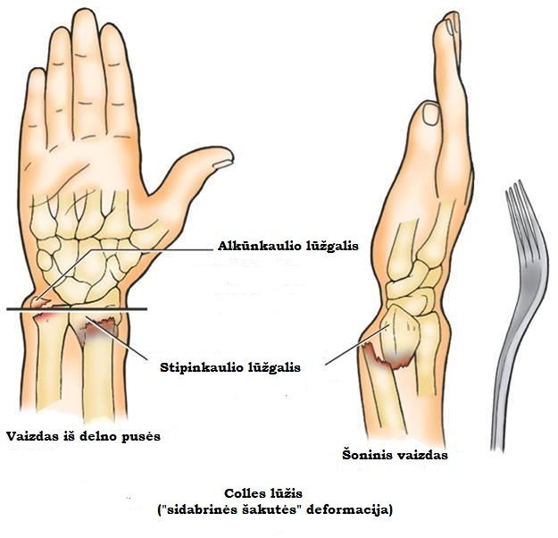 Plaštakos ligos. rankos išvarža - ganglionas