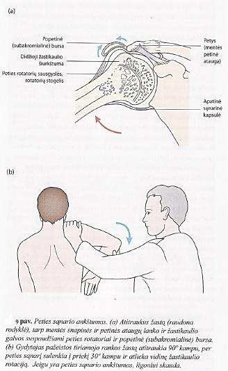 Galvos skausmas kaklo srityje